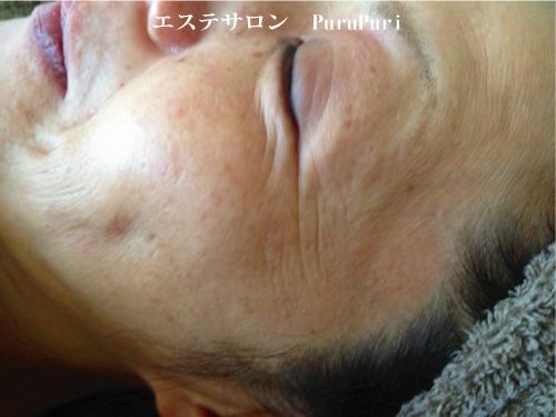 顔筋マッサージ施術前